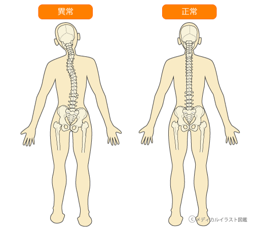 骨格の傾き
