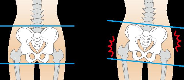 骨盤の歪み・傾き