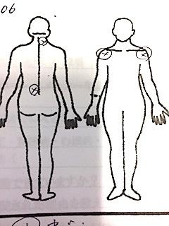 左腰・右首の痛み 両肩の挙高