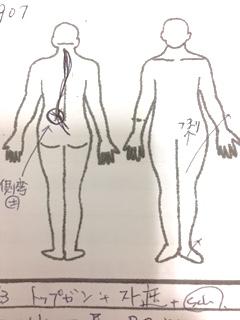 左腰部側弯あり 左股関節外転外旋あり