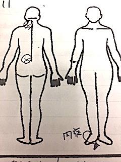 左首、腰のずれ 左足首の内旋