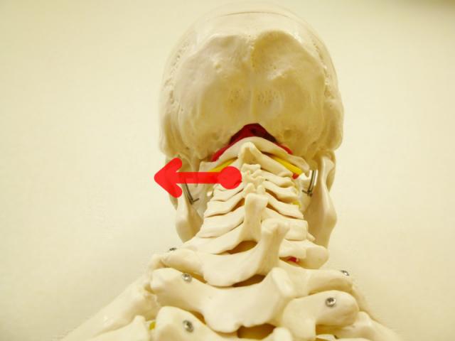 頚椎が左へ変位