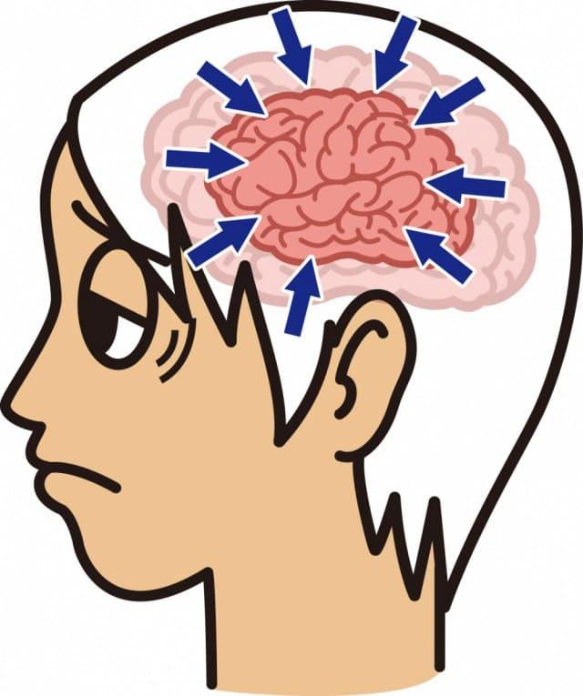 脳脊髄液の滞り
